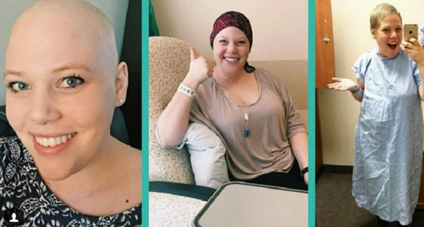 The Top Pros And Cons Of Losing Your Hair From Chemo